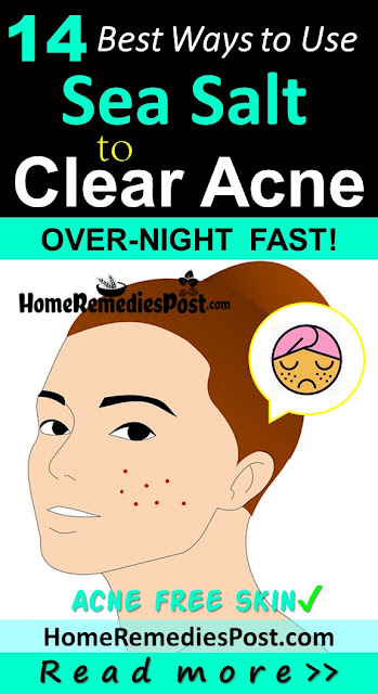 Sea Salt For Acne, Sea Salt Acne, Sea Salt And Acne, Is Sea Salt Good For Acne, How To Use Sea Salt For Acne, How To Get Rid Of Acne, How To Get Rid Of Acne Fast, Home Remedies For Acne, Acne Treatment, How To Cure Acne,