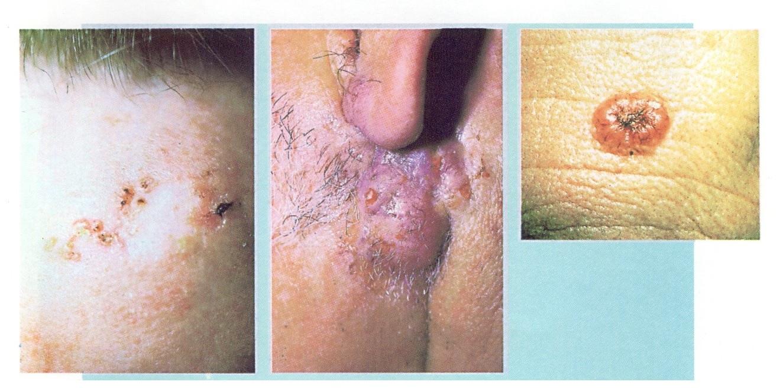 Cẩn thận với ung thư da và đề phòng nó