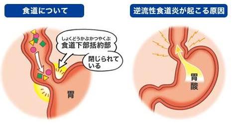 HEALTH TO KNOW 聲音沙啞治不好 原來胃食道逆流傷到聲帶