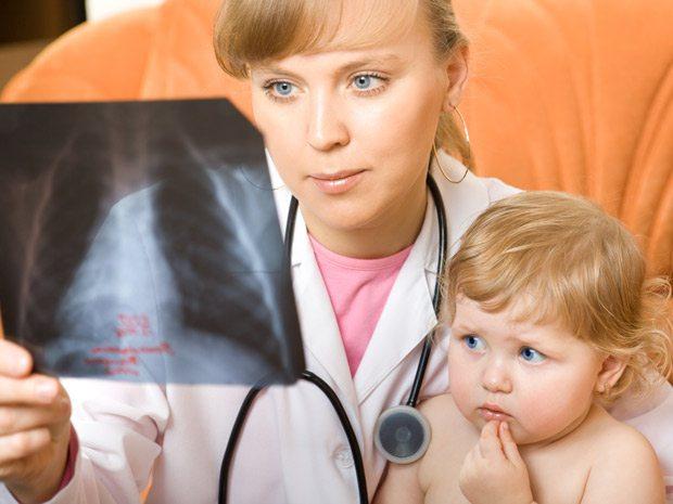Pneumonia pada Anak Ternyata Juga Bisa Diatasi dengan Minyak Kelapa