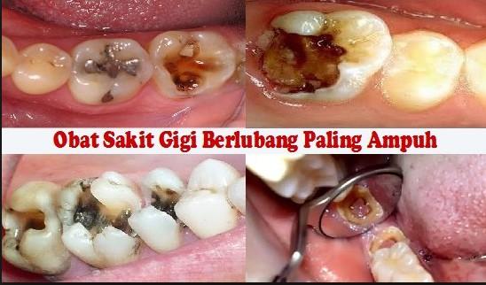 Cara Mengobati Sakit Gigi Berlubang Paling Ampuh Tolak Sakit