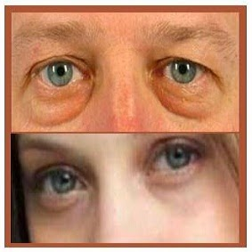 guías de belleza y salud cómo desinflamar las bolsas de los ojos
