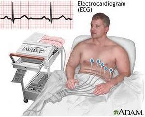 Alat Bantu Elektrokardiografi dibutuhkan di Sektor