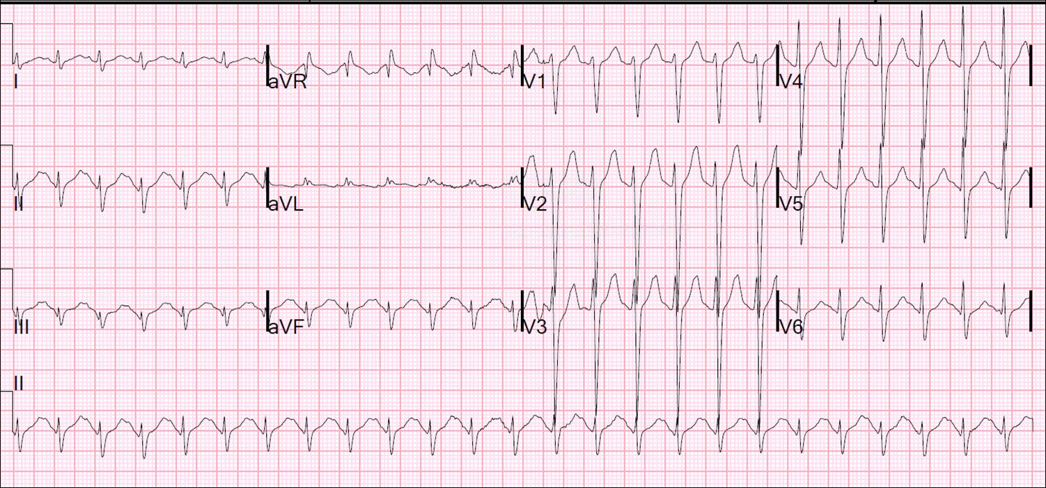 Dr  Smith's ECG Blog: Agitation and Tachycardia