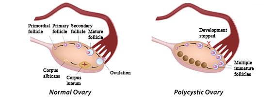 Apa itu PCOs, Policystic Ovary Sindrome ?
