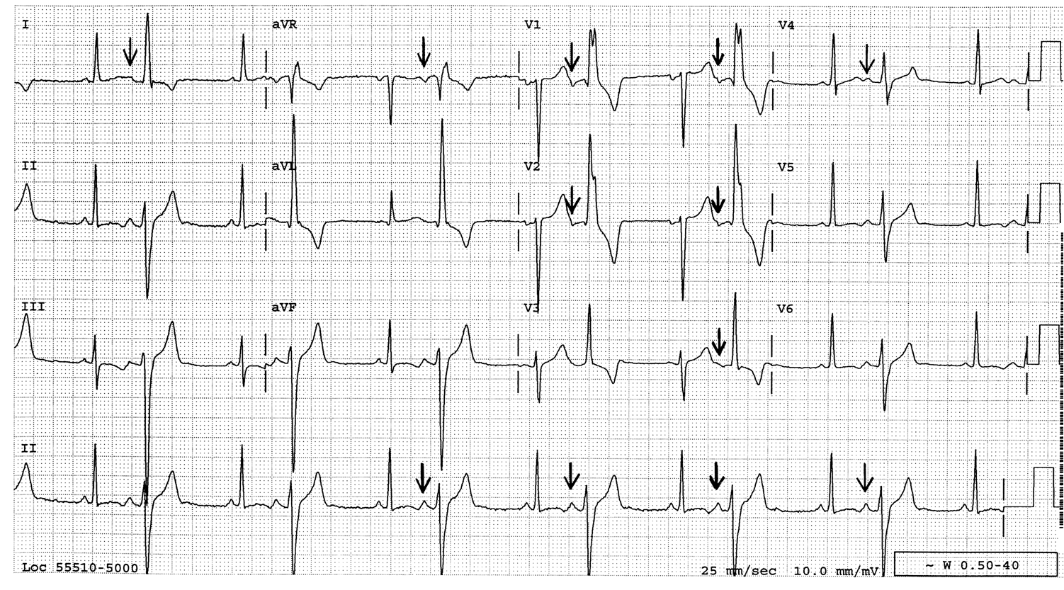 Answer  a  atrial bigeminy with aberrant conduction Atrial Bigeminy