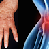 Arthritis: Food That Become Cause and Prevention To Get Worse