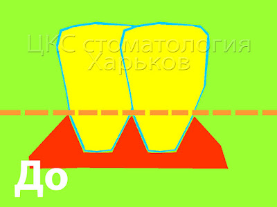 Схематичное изображение до лечения брекетами