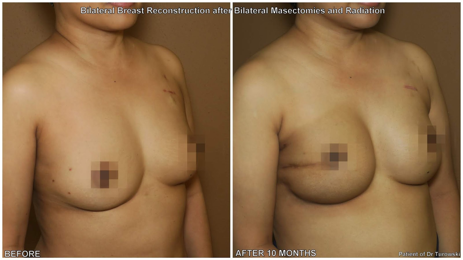 Opinion, actual, breast reconstruction after radiation for that
