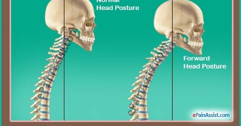 four yoga poses to help tight neck  shoulders