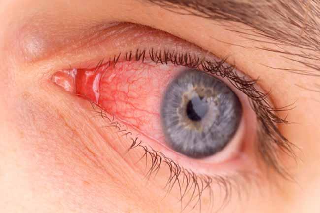 Pengobatan Infeksi Mata Tradisional