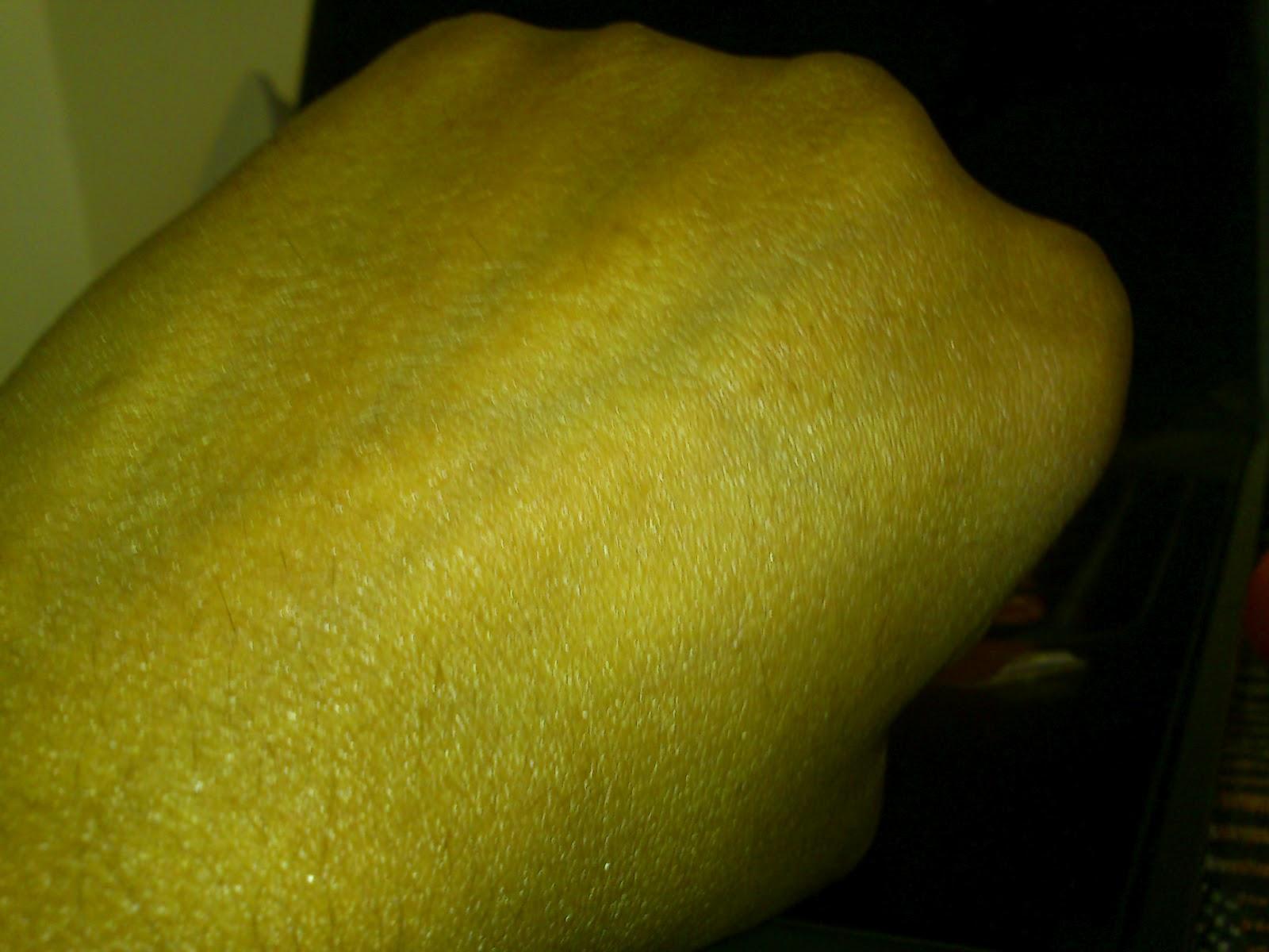 Indian Beauty Zone Acnemoist Moisturizing Cream For Acne Prone