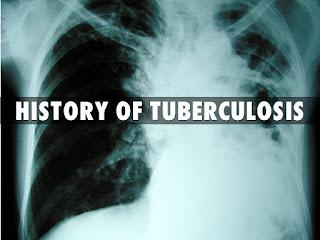Sejarah Tuberkulosis (TBC) Di Indonesia & Dunia