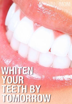 DIY Beauty: 3 Easy and Natural Ways to Whiten Teeth