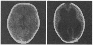 Bradley Voytek brain lesion