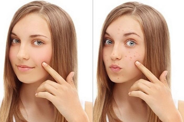 Cara Menghilangkan Flek Hitam di Wajah Dengan Cepat Secara Alami