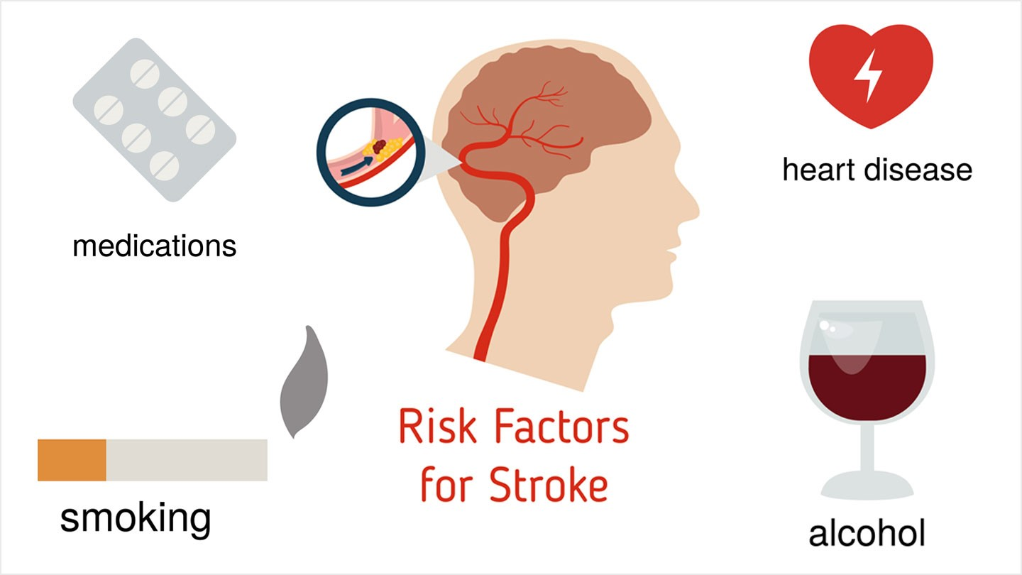 Stroke Causes and Risk Factors photo