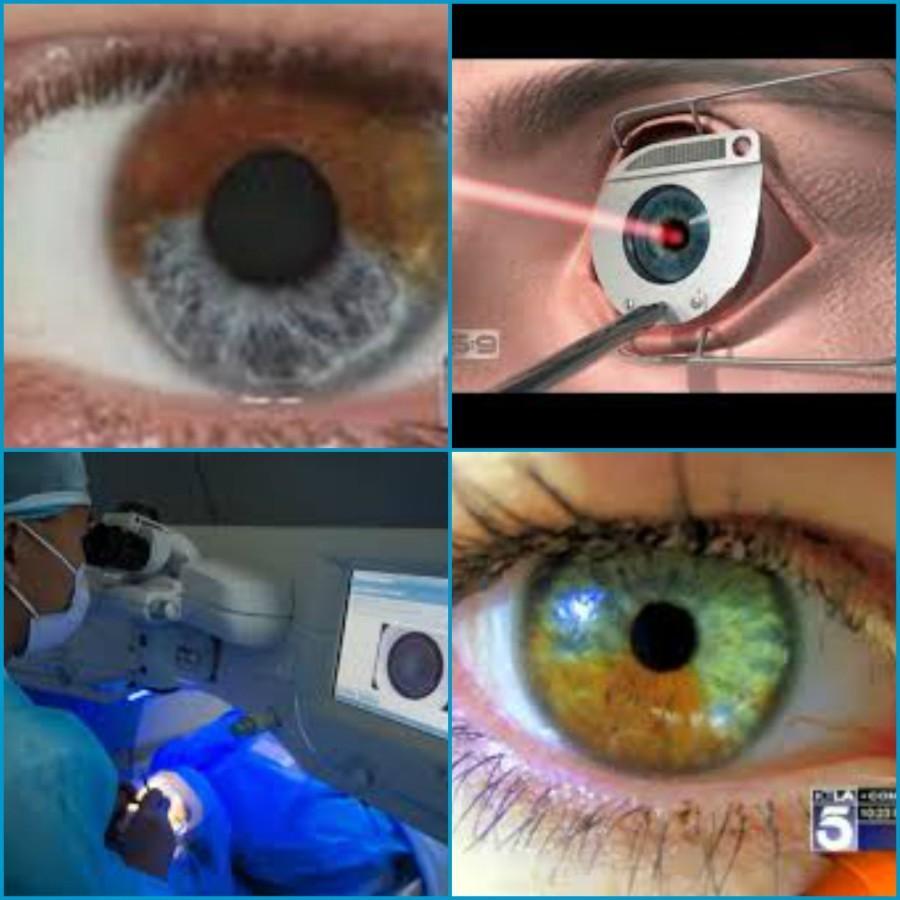 Summary -> Irex Laser Permanent Eye Color Change Surgery Eye