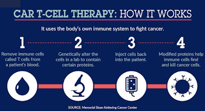 Car T-Cell Therapy: How It Works
