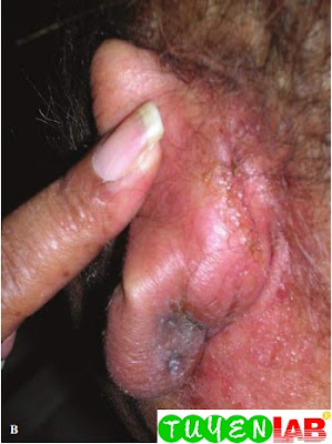 Posterior view of the swollen and infected ear.
