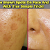 A Popular Dermatologists Revealed the Secret Formula in Eliminating Brown Spots on Face And Skin Naturally!