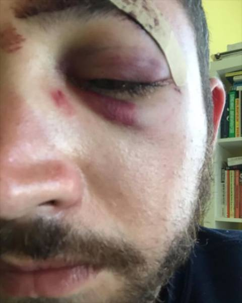 Guy Gets Punched In The Face Because He Looks Like Shia Labeouf (4 pics)