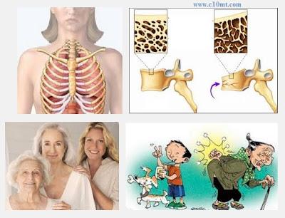 Làm sao để tự phát hiện bệnh loãng xương ở người già ?