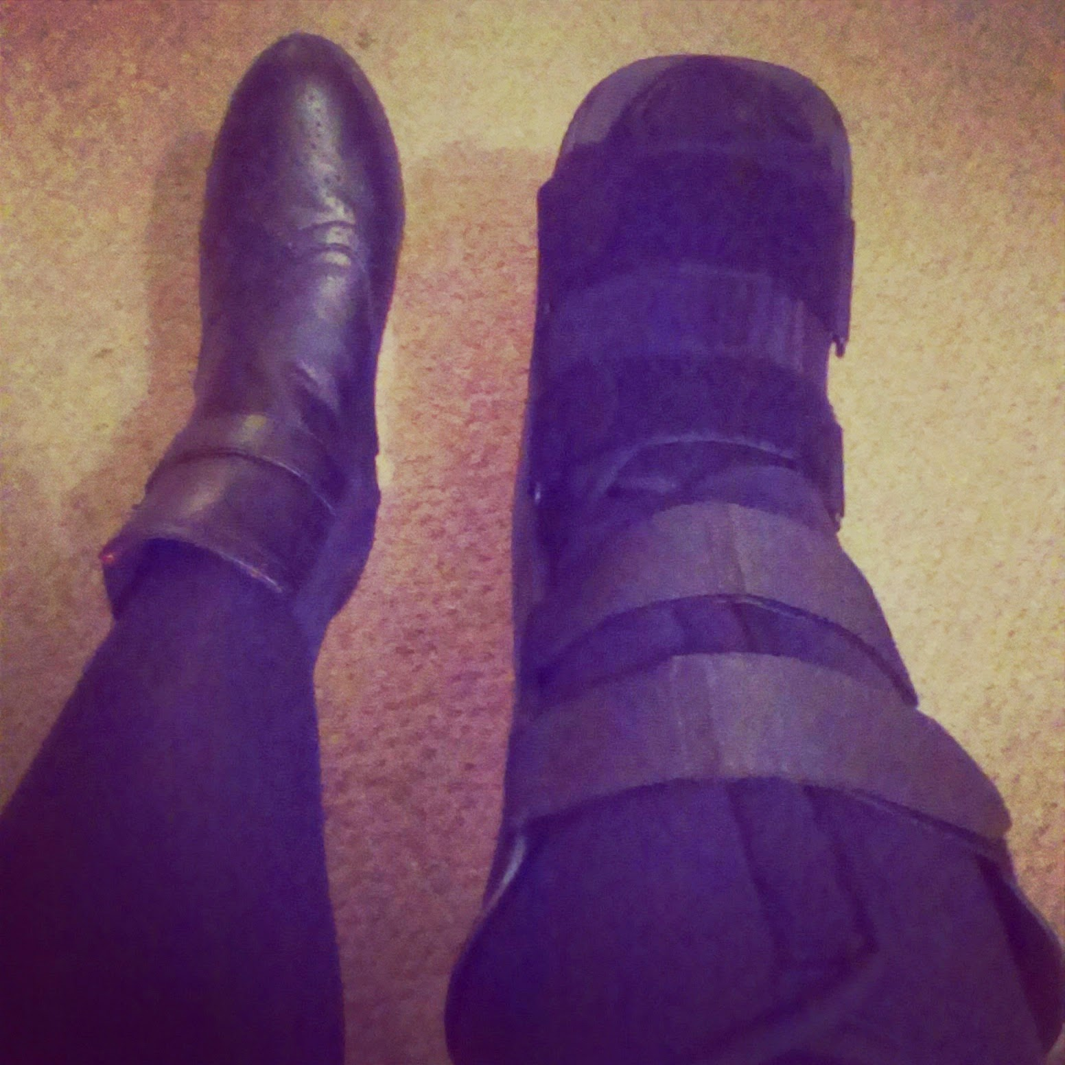 Boot brace worn after fracture