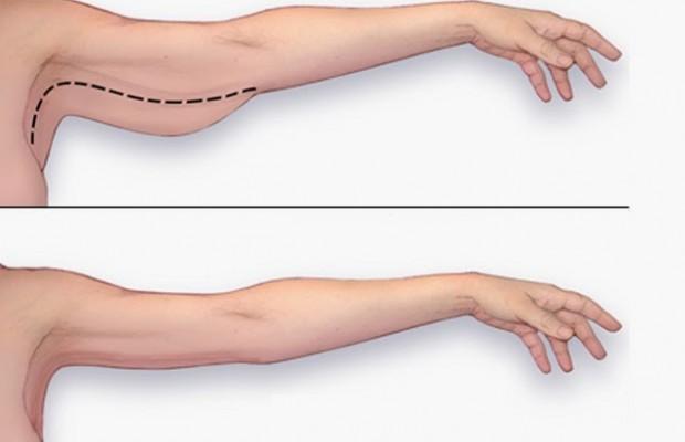 Meilleurs exercices pour perdre la graisse du bras en une seule semaine!