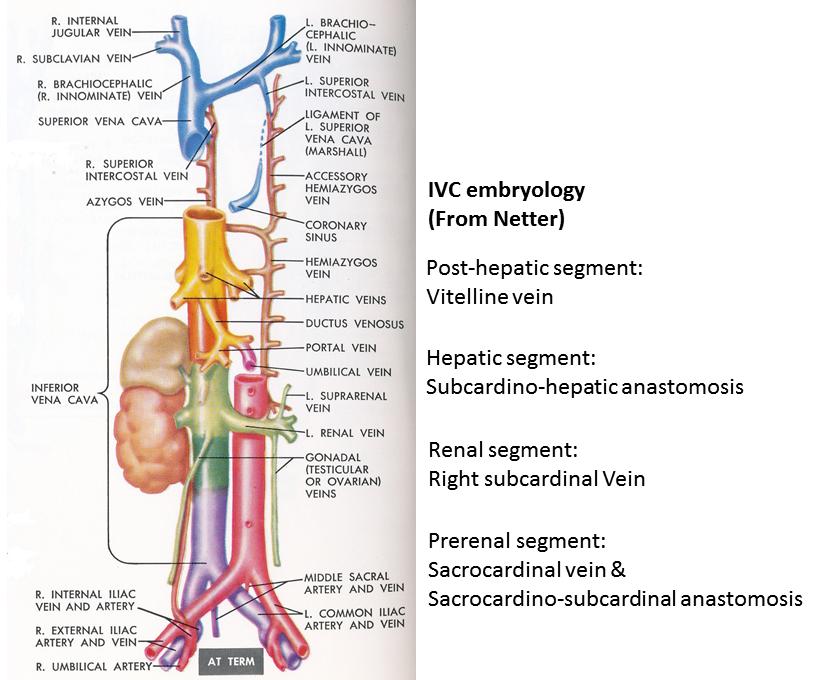 Pedi Cardiology Inferior Vena Cava Embryology