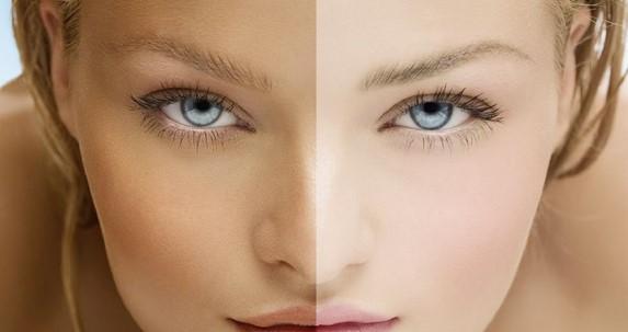 Bagaimana cara memutihkan wajah yang belang cepat & efektif secara tradisional alami untuk laki-laki perempuan