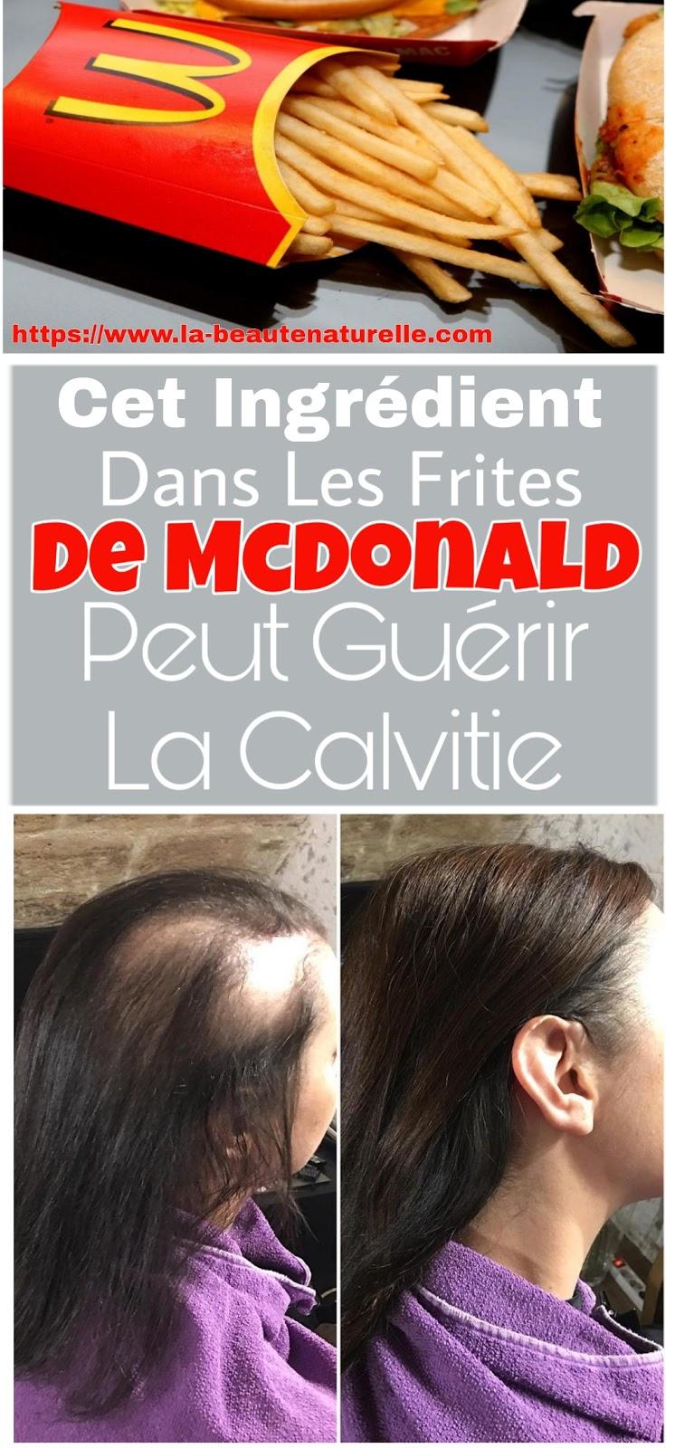 Cet Ingrédient Dans Les Frites De McDonald Peut Guérir La Calvitie