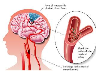 Kenali gejala stroke sebelum terlambat