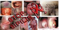 Obat Pencegah Sipilis