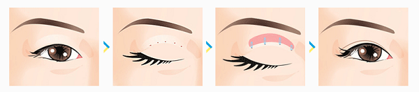 Tạo mắt 2 mí bằng phương pháp luồn chỉ