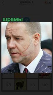 на лице мужчины имеются шрамы на щеке