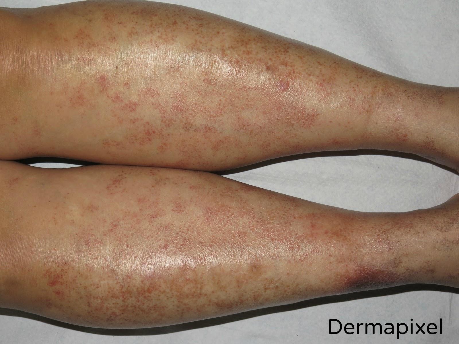 Fragilidad capilar en las piernas