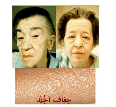 جفاف الجلد الميكسوديما الدرقية الثيروكسين