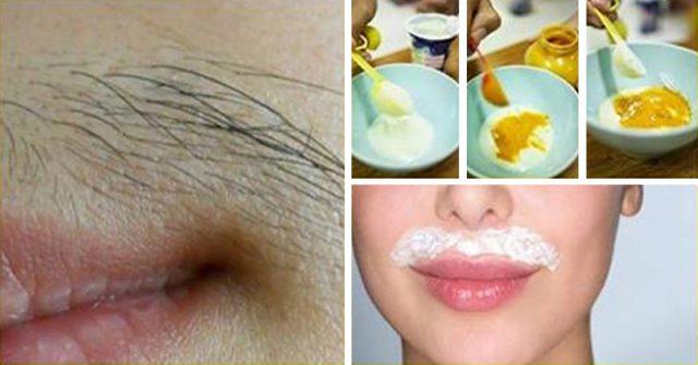 vello del labio superior