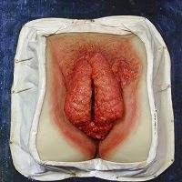 jamur kutil kelamin wanita