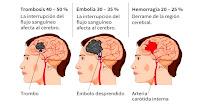 https://steviaven.blogspot.com/2018/05/8-alimentos-que-ayudan-prevenir-derrame-cerebral.html