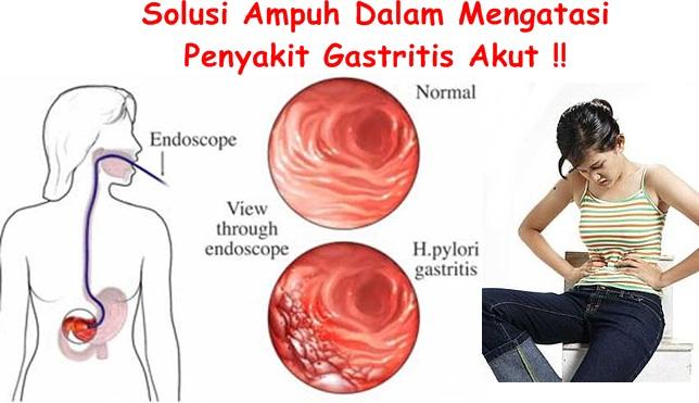 Obat Tradisional Gastritis Akut