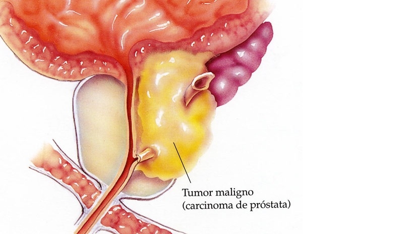 cuando es necesario operar la próstata