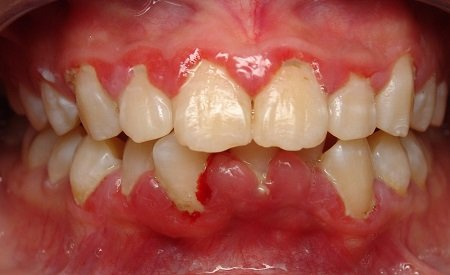 cara mengobati gusi bengkak paling ampuh karena gigi berlubang