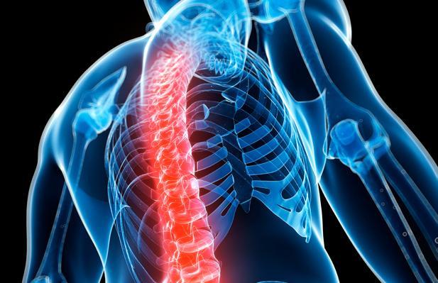 Cara Mencegah Gangguan Penyakit Osteoporosis Cara Mencegah Gangguan Penyakit Osteoporosis