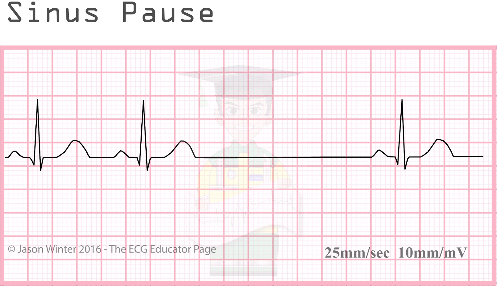 how to read an ecg strip