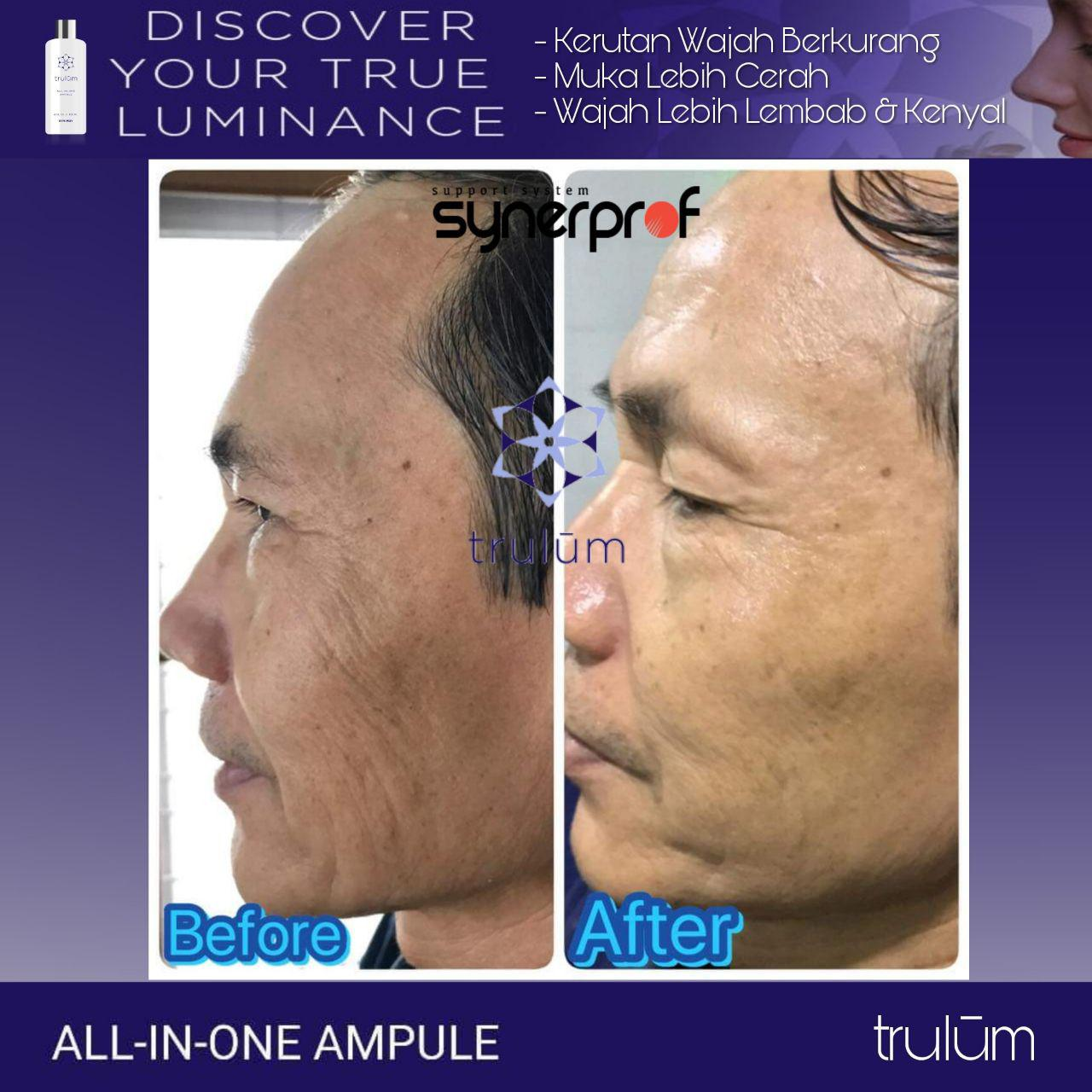 Jual Trulum All In One Ampoule Di Kuta Makmur WA: 08112338376