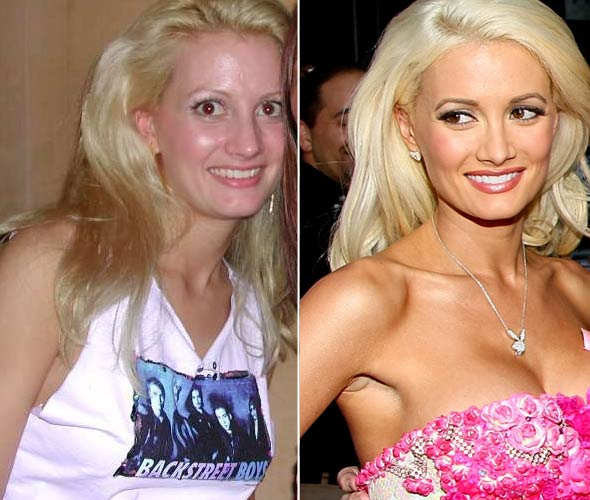 Holly Madison Before After