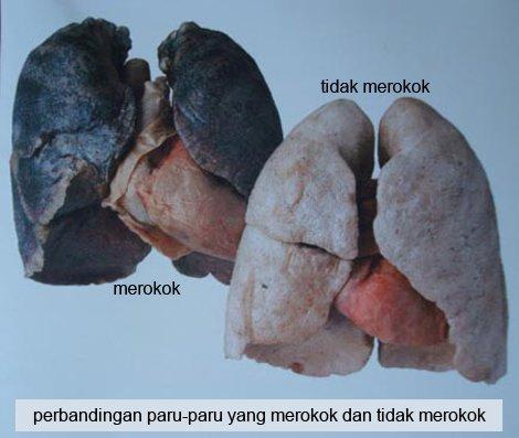 All About Biology: Mengapa Merokok Berbahaya bagi Kesehatan?