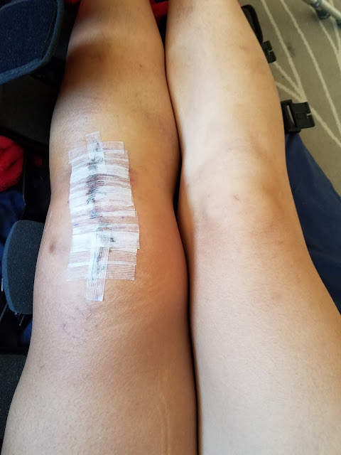 photo of a swollen non-inflamed leg next to the unaffected leg